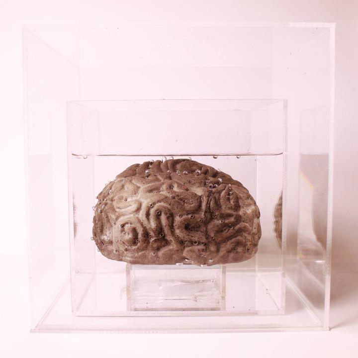 brain 1.jpeg